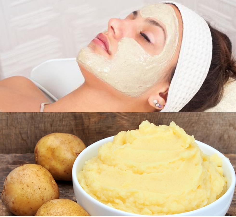 Trị da mặt khô sần với mặt nạ khoai tây sữa tươi