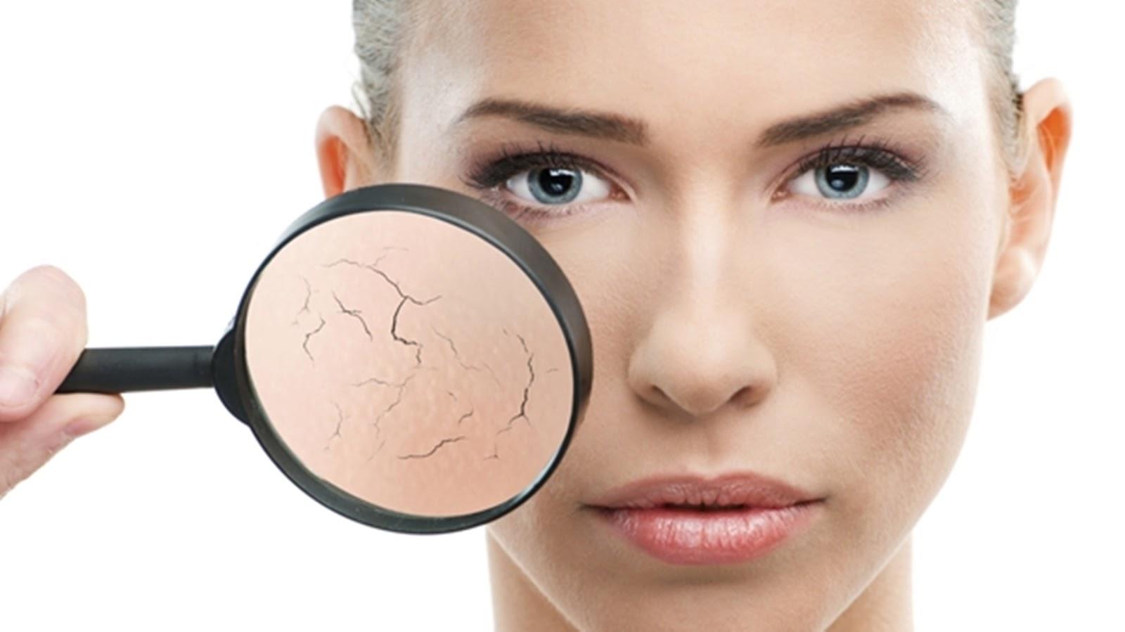 nguyên nhân da mặt khô sần